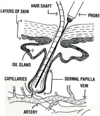 Electrolysis | Facial Hair | Hair Removal Wellington